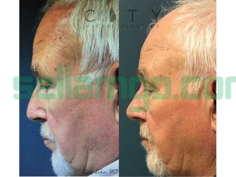 Rhinoplasty (Nose Job Surgery)